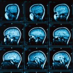 diseases that affect memory loss