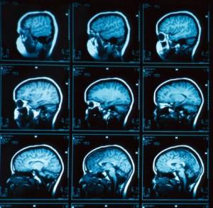 diseases that affect memory loss